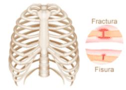 fractura vs fisura de hueso